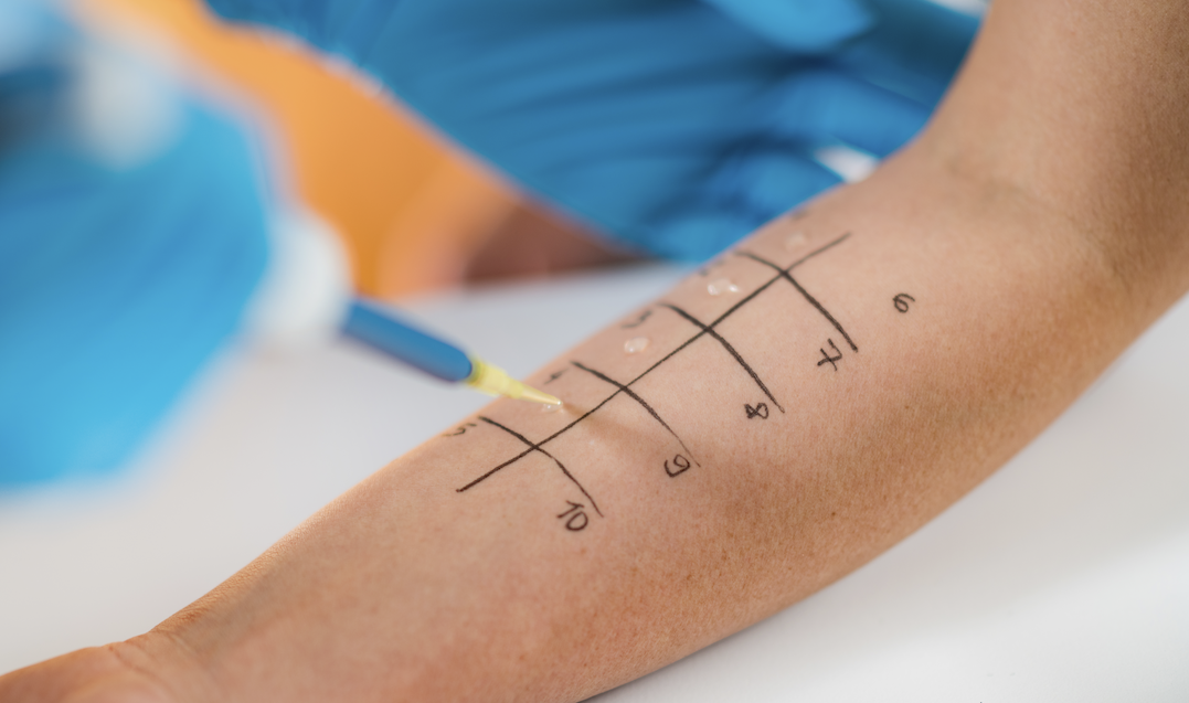 Food Allergy Testing and Diagnosing