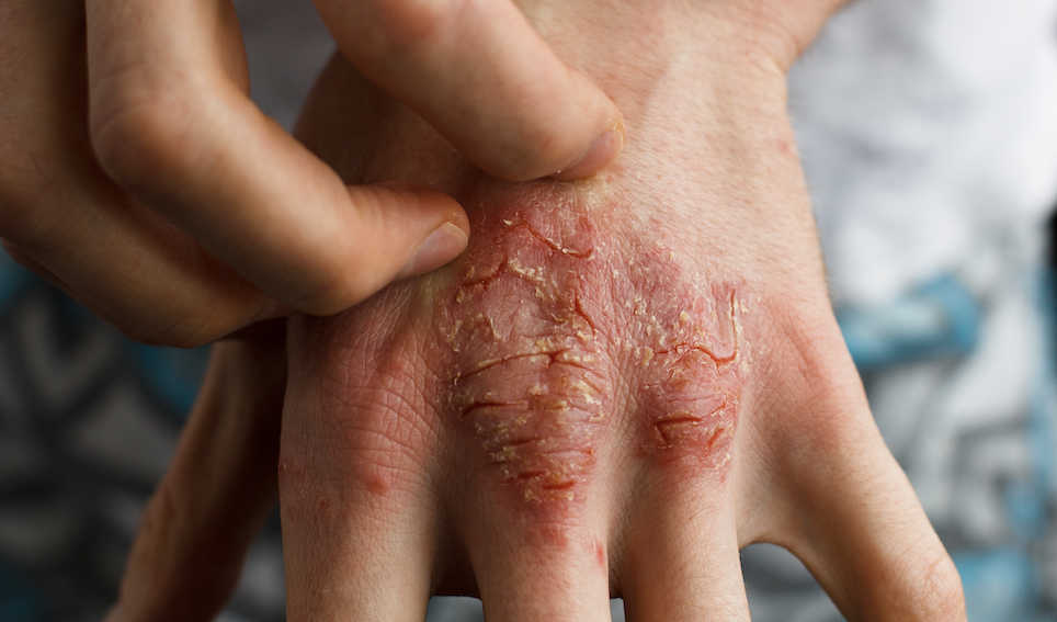 Coping with Atopic Dermatitis (Eczema) as an Adult