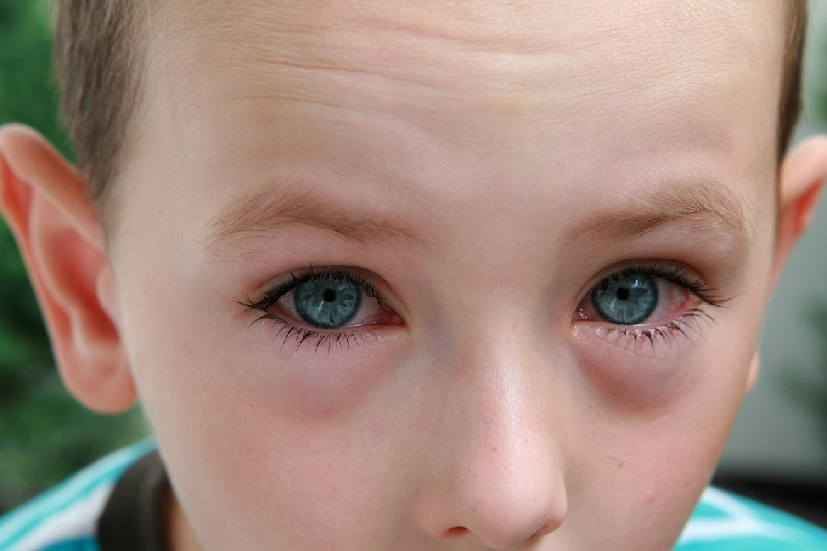Allergic Eye Disease